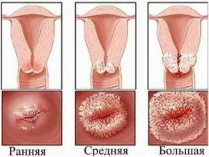 Что такое кисточки на шейке матки и как их лечить народными средствами