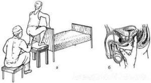 Как правильно делать массаж простаты и сколько по времени