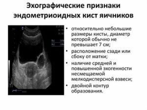 Что такое эхографические признаки кисты правого яичника