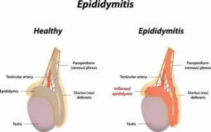 Можно греть эпидидимит