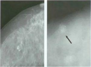 Что такой мелкая обызвествленная киста молочной железы