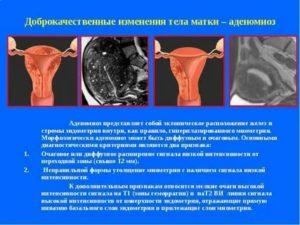 Эхо признаки диффузных изменений миометрия по типу эндометриоза