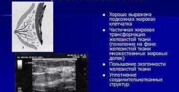 Анатомия молочной железы женщин по узи по митькову