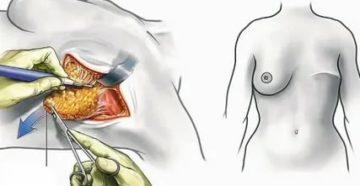 Сколько по времени идет операция по удалению молочной железы