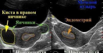 Что показывает узи при воспалении матки и яичников