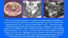 Эндометриоидный рак яичников более благоприятный