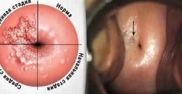 Эндометриоз при раке шейки матки