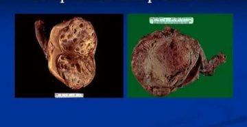 Эмбриональный рак яичка что это такое