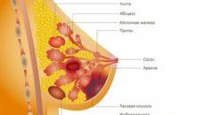 Эндометриоз и рак молочной железы лечение