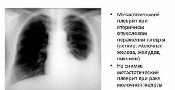Что такое плеврит при раке молочной железы