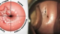 Эндометриоз симптомы и лечение народными средствами отзывы кто вылечился