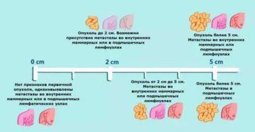 Как быстро развивается рак молочной железы 2 степени прогноз