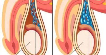 Как делается операция у мужчин на яички