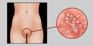 Может ли девственница заразиться венерическими заболеваниями