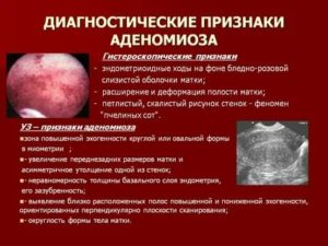 Эхоскопические признаки эндометриоза тела матки что это такое
