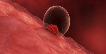 Чем подготовить эндометрий к имплантации при эко