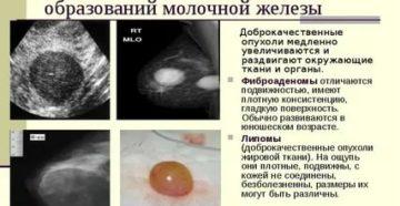 Чем фиброаденома молочной железы отличается от рака